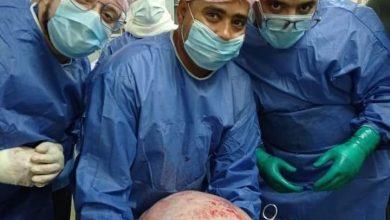 Photo of مستشفي سوهاج الجامعي ينجح فى استئصال ورم يزن ١٥ كجم من فتاة فى العشرين من عمرها