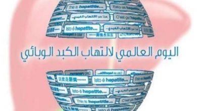Photo of مظاهر إحتفال مصر باليوم العالمي للكبد الوبائي